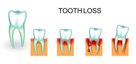 vector illustration of healthy and diseased tooth. bleeding gums. tooth loss