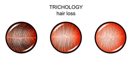 Illustration of hair loss, dermatology. Illustration