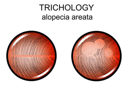 Illustration of alopecia areata. Illusztráció