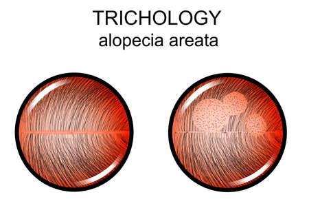 Illustration of alopecia areata. Illustration