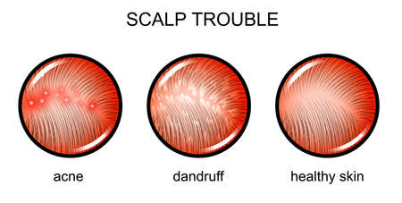 vector illustration of a problematic scalp. dermatology