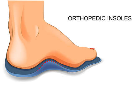 vector illustration of orthopedic insoles for shoes