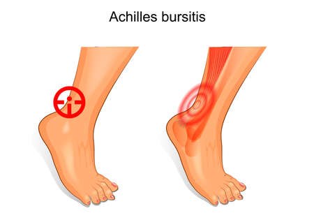 inflame: vector illustration of a foot is affected by Achilles bursitis.