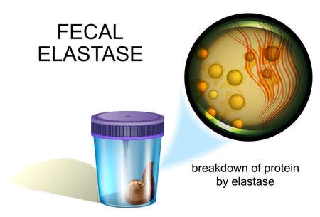 vector illustration of a fecal elastase test, coprology