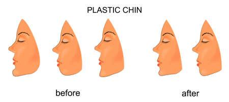 Illustration of a plastic chin.