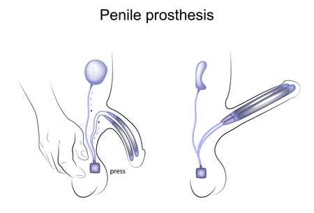 Illustration vectorielle d'une prothèse pénienne, urologie