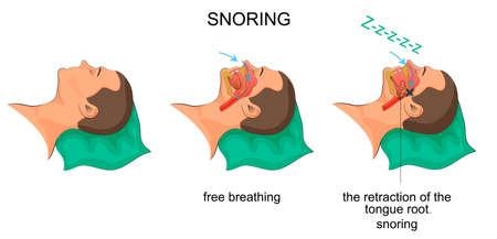 ベクトルのいびきをかいて眠る男イラスト