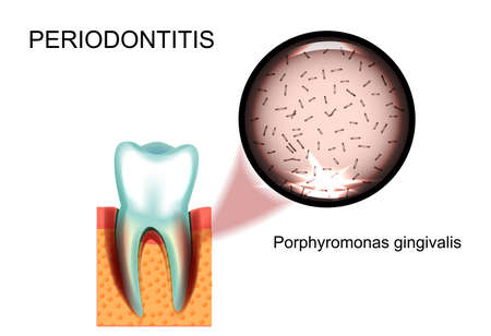 carious cavity: vector illustration of periodontitis. Porphyromonas gingivalis. stomatology. Illustration