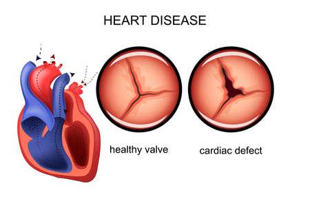 donacion de organos: Ilustración de un defecto del corazón. Vectores