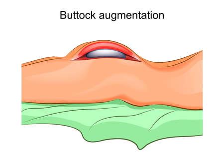 Illustration of a gluteoplasty.