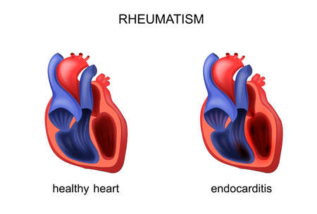 Illustration of heart healthy and diseased endocarditis.