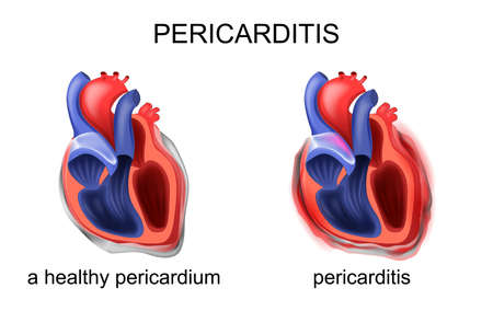 Vector illustration of heart, healthy pericardium, pericarditis Ilustrace