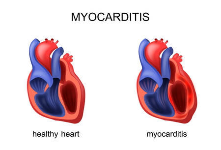 chronic: vector illustration of heart healthy and diseased myocarditis