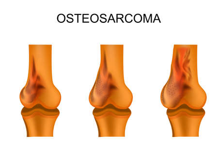 Vector illustration of a femur affected by osteosarcoma Illustration