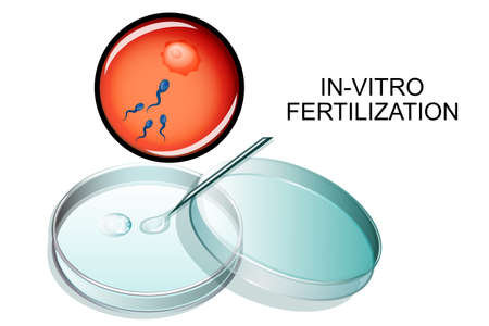 vector illustration of in vitro fertilization. IVF