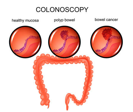 Illustration of a colon polyp and cancer.