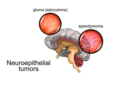 Vector illustration of a brain tumor, neurosurgery Illustration