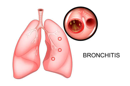 Illustration of lungs affected by bronchitis. Illusztráció