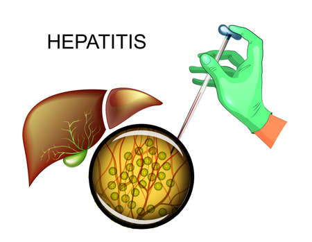 Vector illustration of analysis for hepatitis C and liver disease Illustration