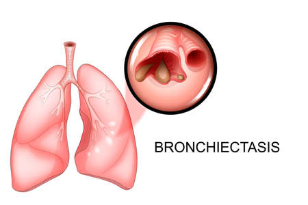 vector illustration of lungs affected by bronchiectasis disease