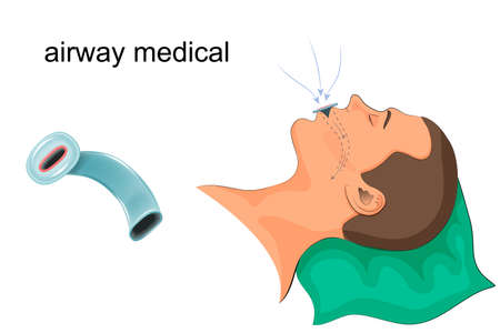 Vector illustration of a medical duct in the mouth
