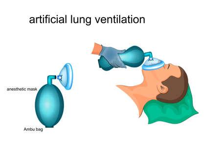 Vector illustration of artificial ventilation by Ambu bag and masks