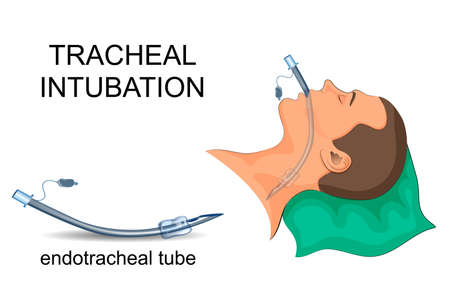 Vector illustration of tracheal intubation. Artificial ventilation of the lungs Çizim