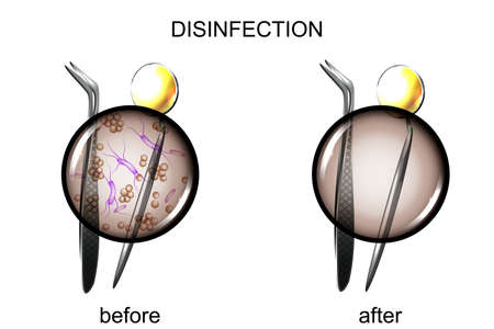 Vector illustration of dental tools before and after sterilization