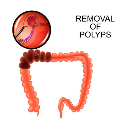 vector illustration of polyps in the colon. removal of polyps Ilustracja