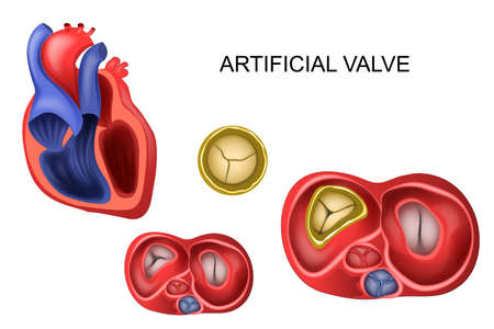 Vector illustration of a prosthetic tricuspid heart valve