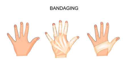 recuperation: Bandaging of hand vector illustration. Illustration