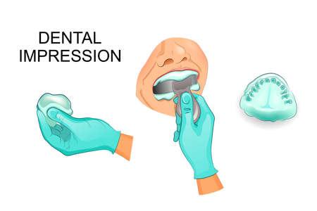 vector illustratie van een tandheelkundige cast van menselijke tanden