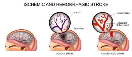 뇌 혈관의 벡터 일러스트와 뇌졸중의 원인에 대한 간략한 설명