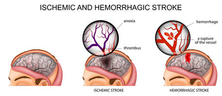 vector illustration of the vessels of the brain and a brief description of the causes of stroke