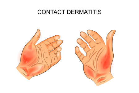 Vector illustration of contact dermatitis. Ilustração