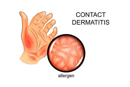 Vector illustration of an allergen on the skin. Illustration
