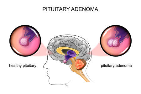 vector illustration of a healthy pituitary and pituitary adenoma