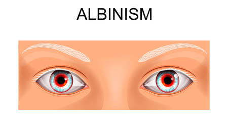 vector illustration of a person suffering from albinism Illustration