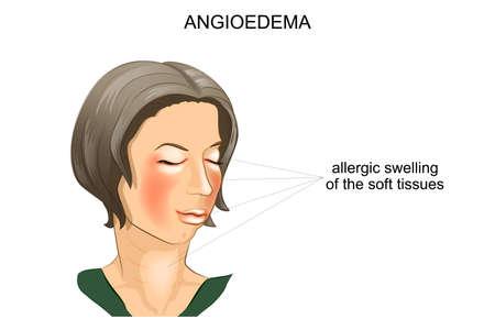 血管性浮腫のベクター イラストです。アレルギーの腫れ顔の軟部組織の