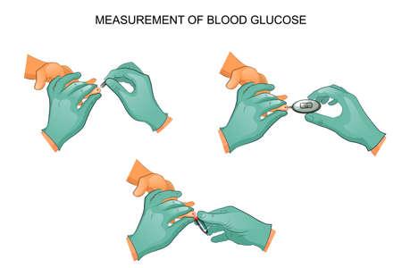 Illustration of a blood glucose measurement.