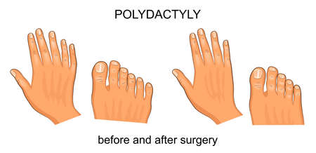 Vector illustration of polydactyly before and after surgery. Ilustração