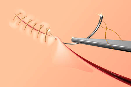 vector illustration of sewing up the wound with surgical needle