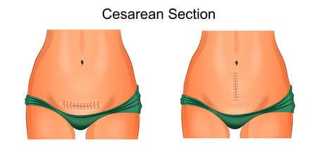 Illustration of sutures after cesarean section. Illustration