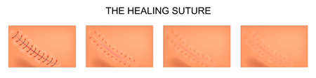 Illustration of the process of healing of sutures. Illustration