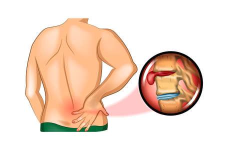 Back pain illustration. Illustration