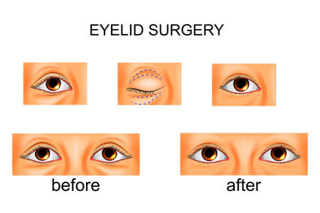 Illustration of eyelid plastic surgery. Illustration
