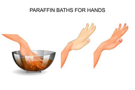 illustration vectorielle d'un bain de paraffine pour les mains Vecteurs
