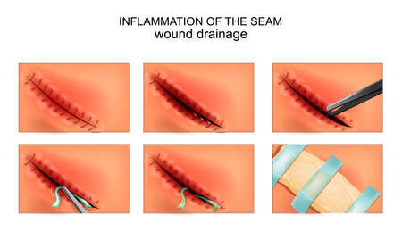 vector illustration of a postoperative inflammation of the joint. wound drainage