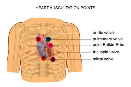 Ilustración de los puntos de auscultación del corazón.