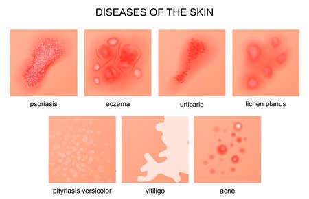 皮膚の病気のベクトル イラスト